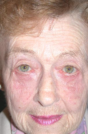Lower lid transcutaneous blepharoplasty post op