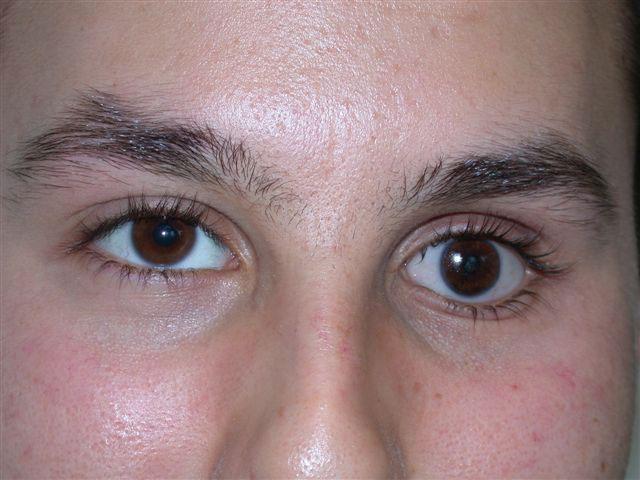 sunken eyes meaning - 640×480